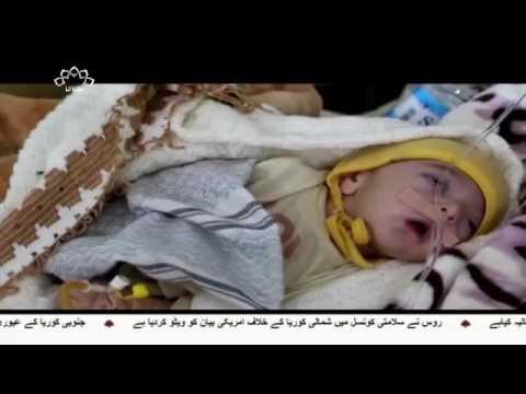 [20 April 2017] یمن کے شہری علاقوں پر سعودی بمباری - Urdu