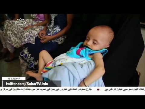 [19Jul2017] یمن میں ہیضے سے مرنے والوں کی تعداد میں اضافہ - Urdu