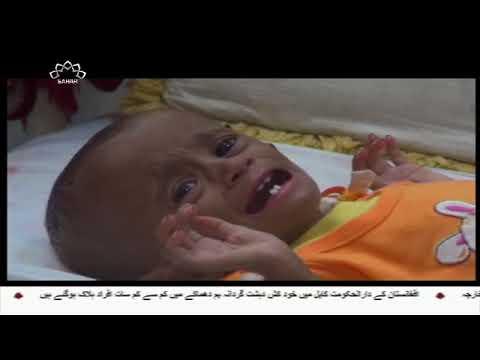 [16Nov2017] یمن میں انسانی المیے کا خدشہ ہے، اقوام متحدہ- Urdu