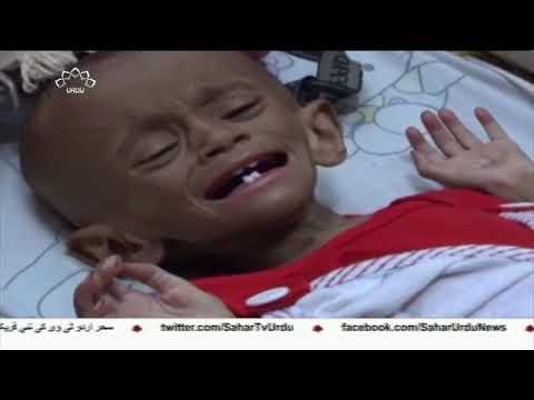 [22Jun2018] الحدیدہ میں شکست پر امارات کی تلملاہٹ  - Urdu