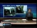Iran Ends US Eye Bio Implants Monopoly - English