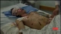On Israel-s use of white phosphorus in Gaza - CNN - Jan 12 - English