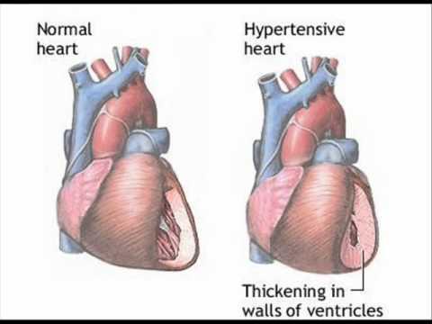 HIGH BLOOD PRESSURE- HEALTH EDUCATION - URDU