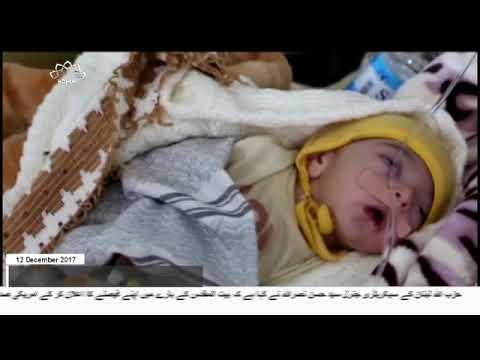 [12Dec2017] یمن پر وحشیانہ سعودی جارحیت  - Urdu