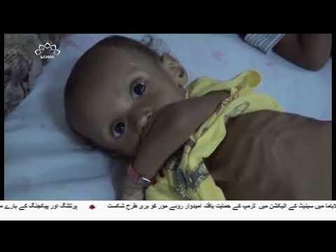 [13Dec2017] سعودی آلہ کاروں پر میزائلی حملہ - Urdu