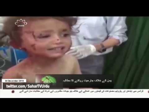 [04Dec2018] یمن کے خلاف جارحیت روکنے کا مطالبہ  -Urdu