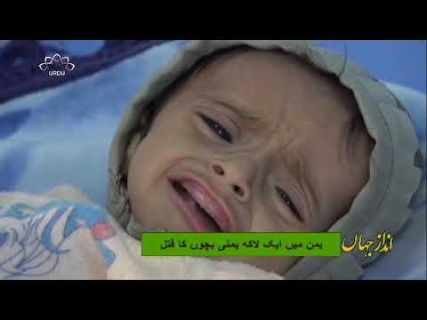 [20Mar2019] یمن میں ایک لاکھ یمنی بچوں کا قتل  - Urdu