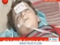 [22 Mar 2013] UN to probe Aleppo chemical attack Ban - English