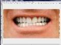 GIMP - How to whiten teeth - English