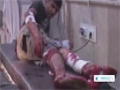 [21 May 2014] Dozens wounded in Aleppo shelling - English