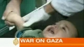 Children suffer in Israels war on Gaza - English